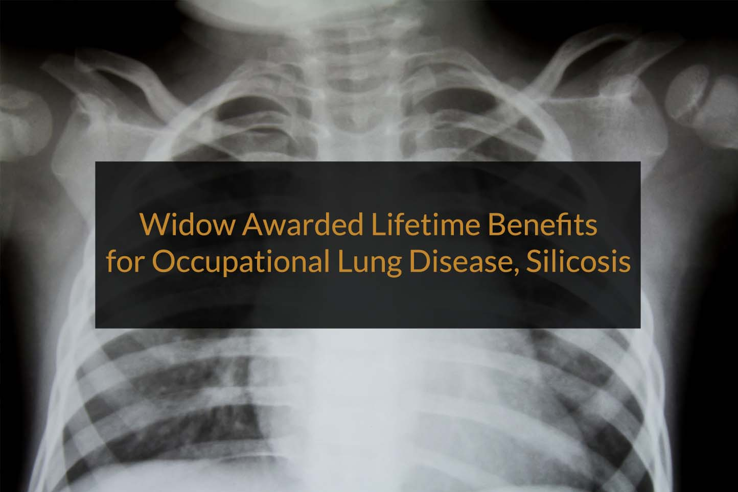 lifetime benefits for occupational lung disease silicosis